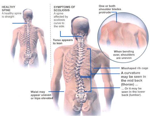 What are the Symptoms of Scoliosis