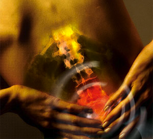 Predisposing risk factors to back pain
